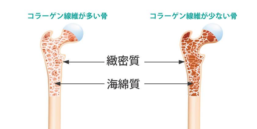 骨折しやすい骨の構造