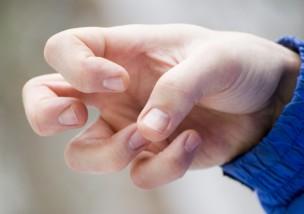 ばね指の症状