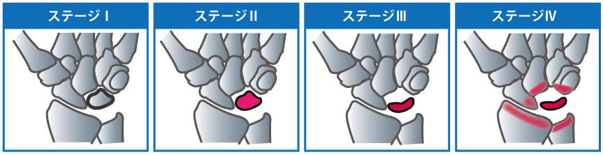 ステージ1~4