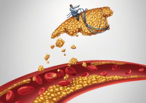 血管コレステロール