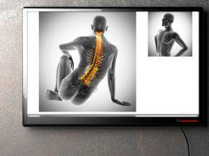 悪い姿勢と腰痛