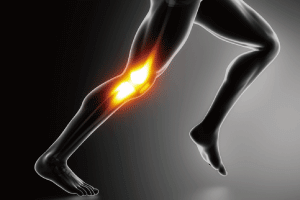 膝痛の筋膜リリース