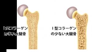 折れやすい骨の特徴