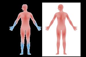 冷え性の血液循環