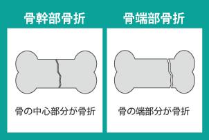 骨幹部骨折と骨端部骨折