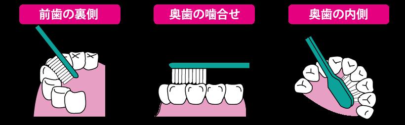 歯ブラシの当て方B