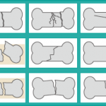 骨折の種類と特徴!