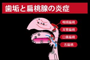 歯垢と扁桃腺の炎症