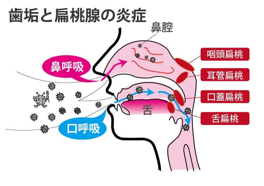 歯垢と扁桃腺