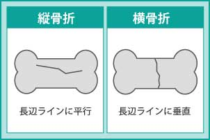 骨折線による分類