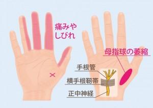 手根管症候群のしびれと痛み