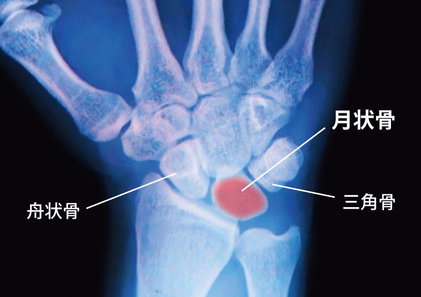 キーンベック病の月状骨