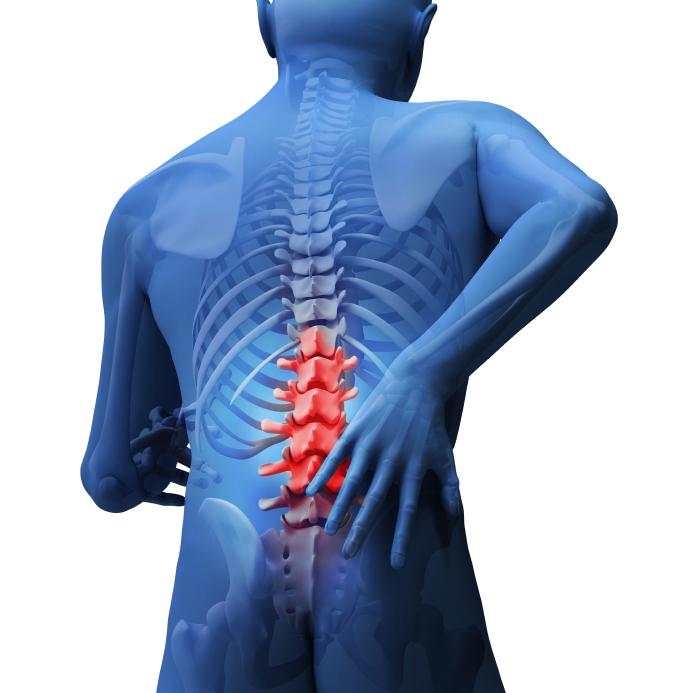 腰椎圧迫骨折の後遺症と予防