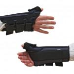手首の骨折と捻挫の症状の違い!