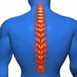 胸椎圧迫骨折の後遺症と予防!