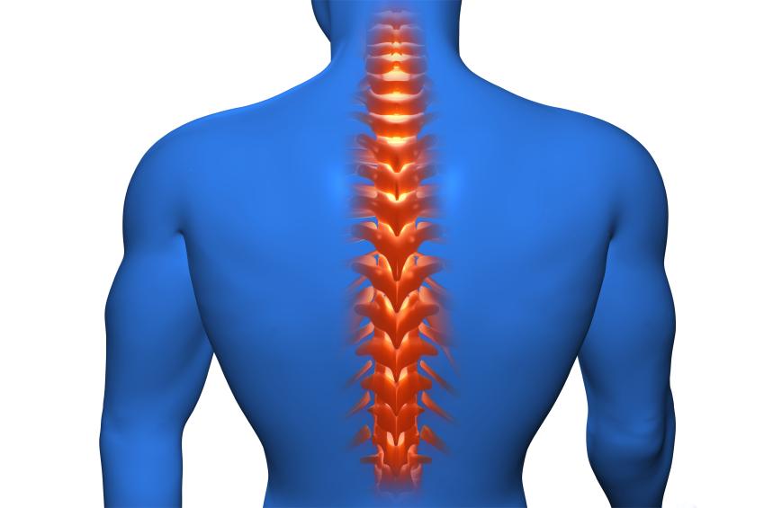 胸椎圧迫骨折の後遺症と予防
