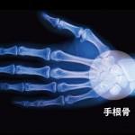 手首の骨折による症状と治療について!