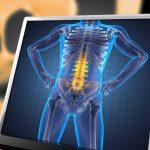 腰痛の5つの原因とは?あなたの痛みの元凶を特定!