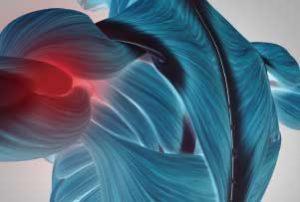 肩の筋膜炎