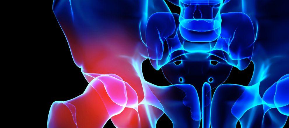 股関節痛と筋膜リリース