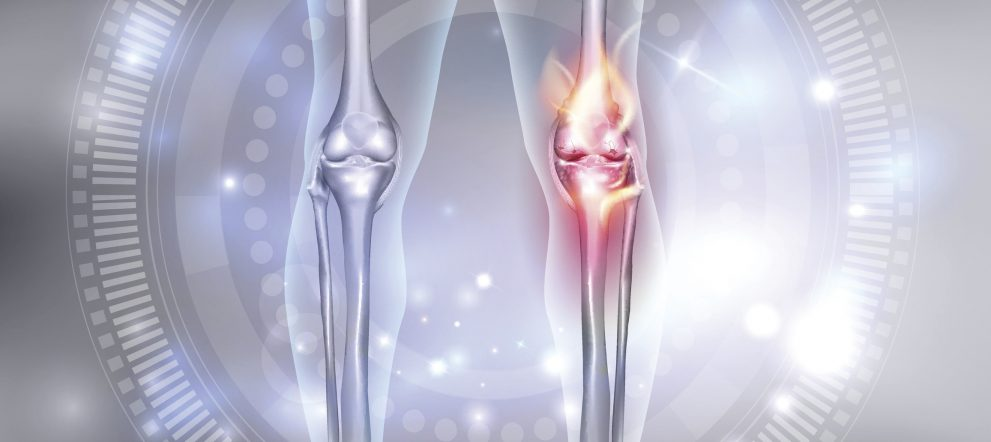 ひざ関節の筋膜リリース