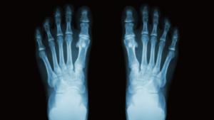 足底腱膜炎のレントゲン