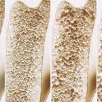 骨密度を改善するコラーゲンと骨の関係【管理栄養士監修】