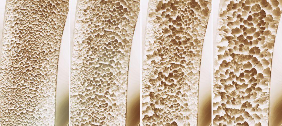 骨密度の段階的低下