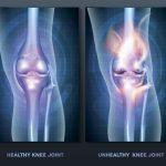 【軟骨の傷害】骨端症と離断性骨軟骨炎の治療と予防