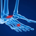 【ケーラー病】足の甲の骨端症の症状と治療法!