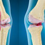 【靭帯成分】エラスチンの弾性がうみだす関節改善力!
