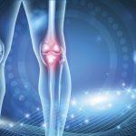 ひざ関節痛の86%が解消!プロテオグリカンの作用検証