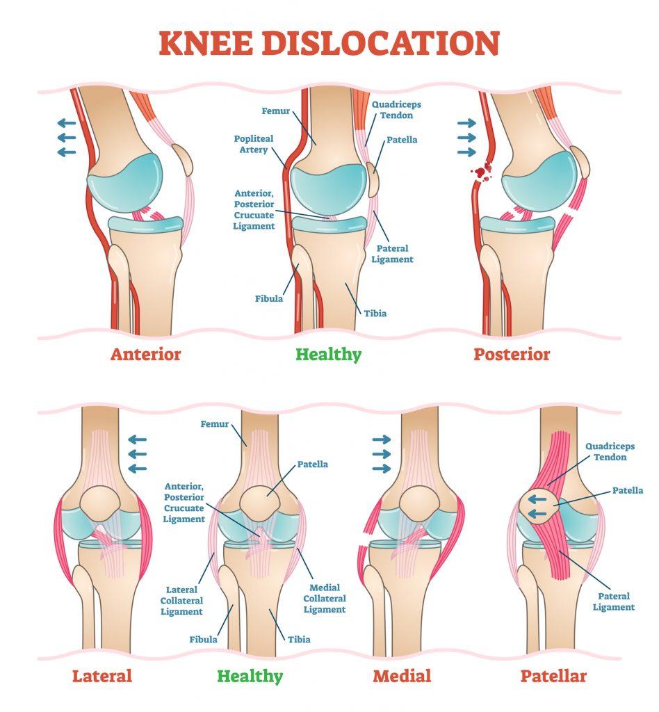 ひざ靭帯損傷の原因