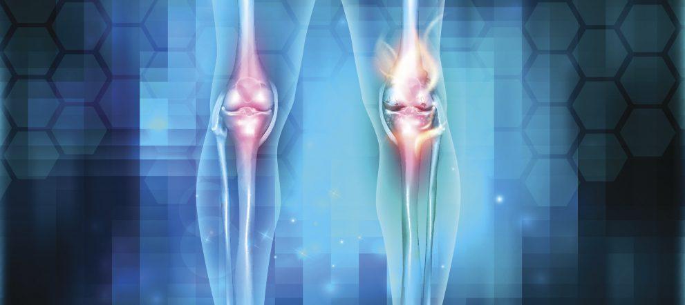ひざの靭帯損傷