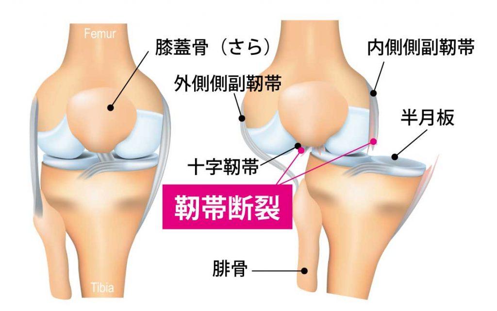 靭帯と靭帯断裂