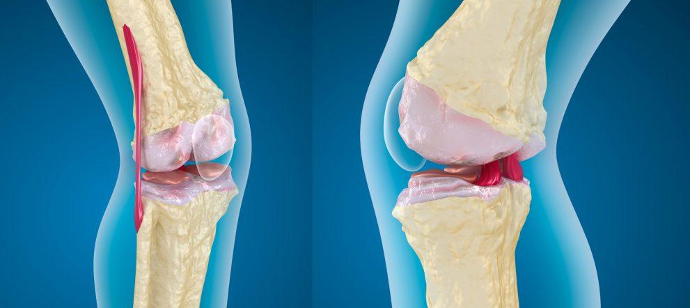 靭帯とエラスチン