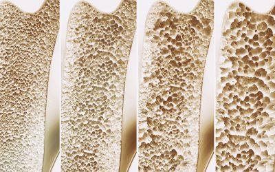 骨とコラーゲン
