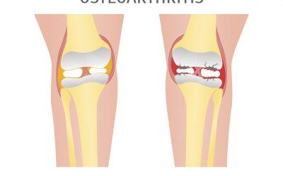 関節軟骨の再生
