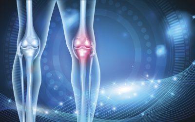 プロテオグリカンと膝関節痛