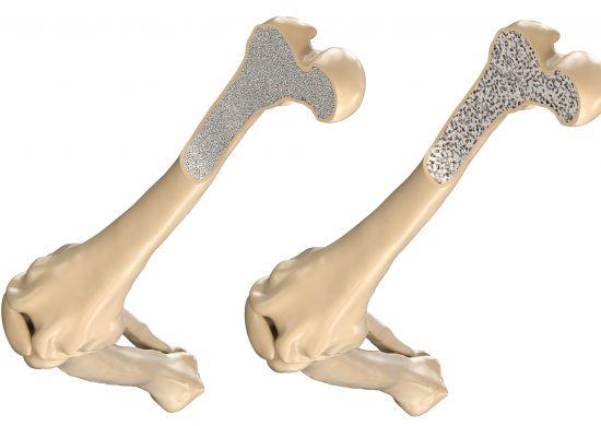 骨密度とコラーゲン