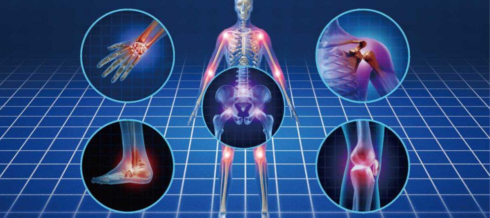 関節とプロテオグリカン